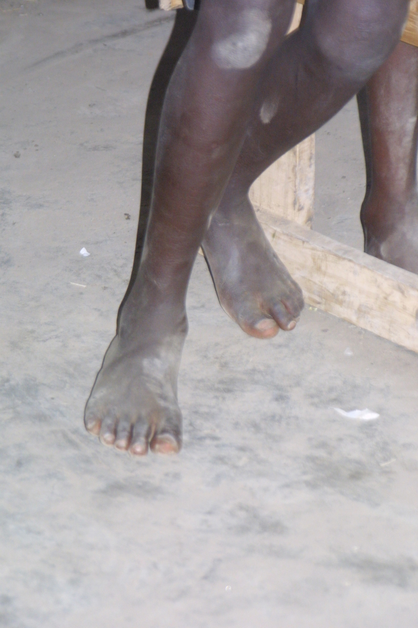 I was barefooted, though I had to trek a ways to go to and from school.  We could not afford a single pair of shoes.