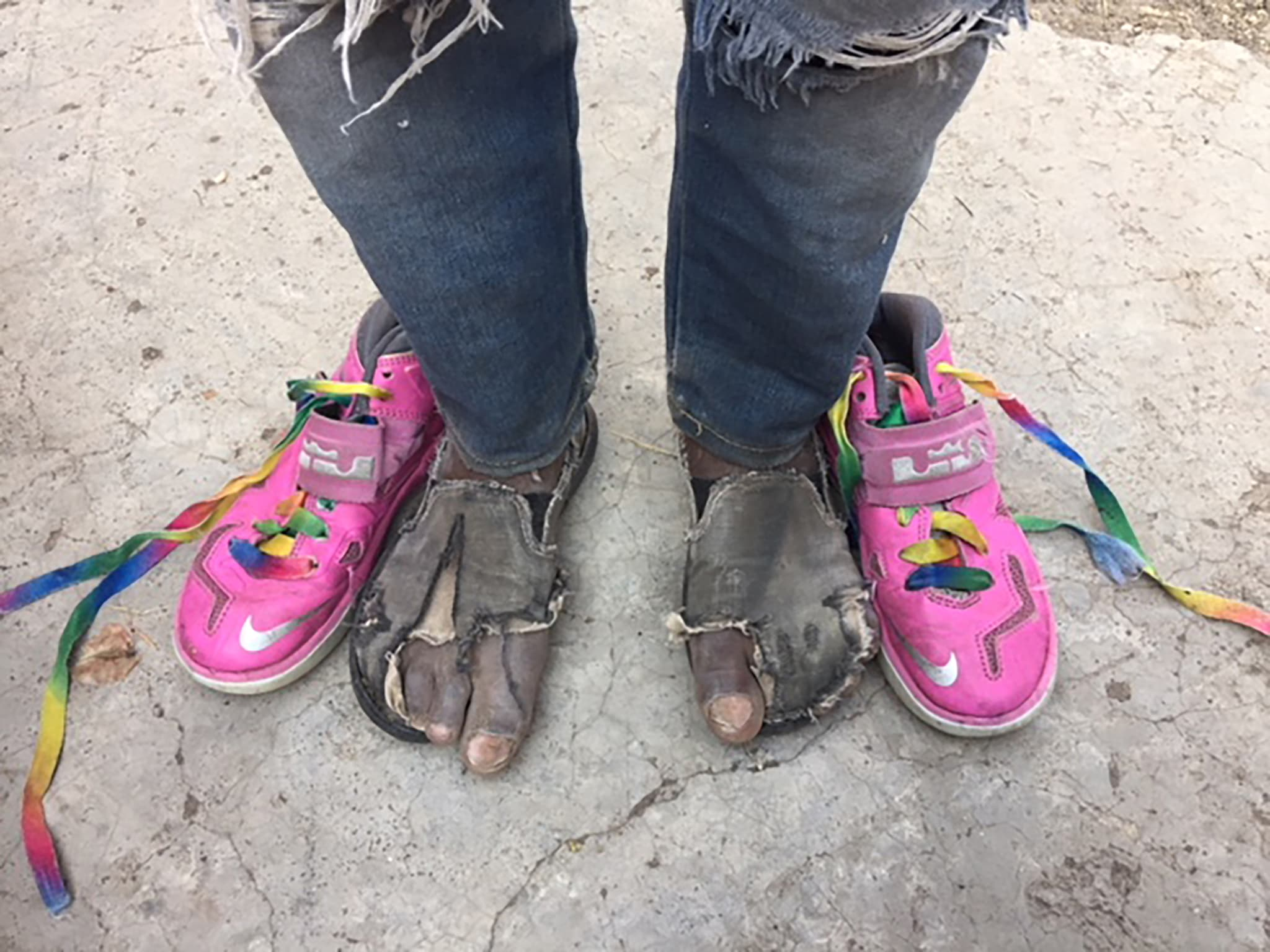 This before and after photo shows the ongoing need for shoes that our children face.  Your donations helped us deliver thousands of pairs of shoes to needy recipients.